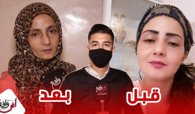 سيدة تغيرت ملامحها بعد سنة من الصراع مع المرض.. قصة أم تضحي من أجل مستقبل أبنائها +فيديو